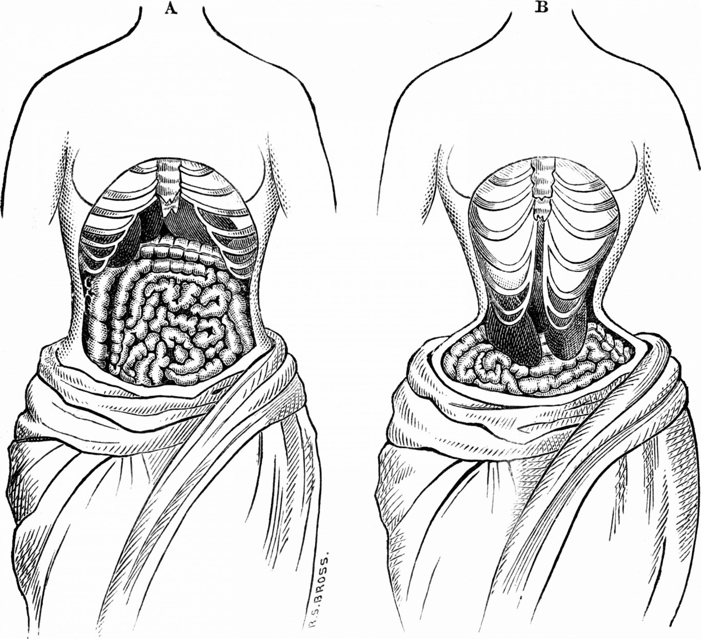 waist-training-effects-health-hazards-organ-displacement