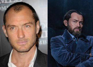 celebrity-hair-loss-famous-transplants-jude-law-hair-plug-implants