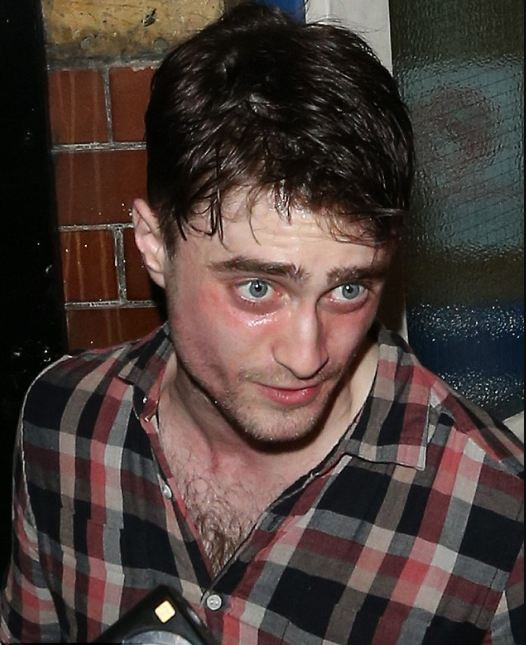 famous-recovering-alcoholics-celebrity-addicts (8)-daniel-radcliffe-cocaine-overdose