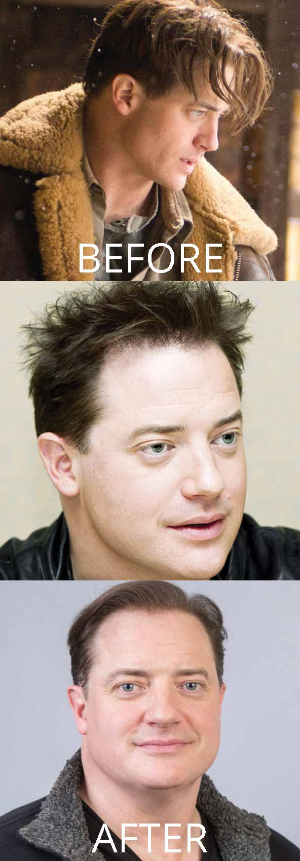 hollywood-celebrity-hair-transplant-loss-(1)-brendan-fraser-mummy-receding-hairline