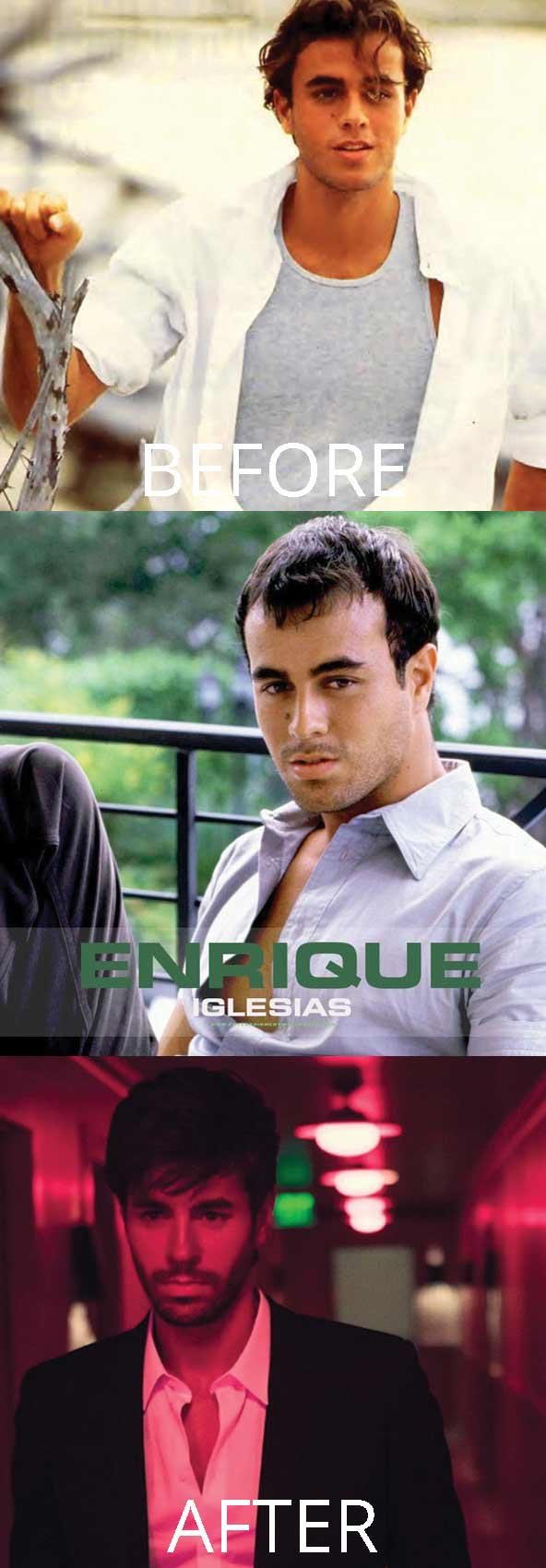 hollywood-celebrity-hair-transplant-loss-(21)-enrique-iglesias