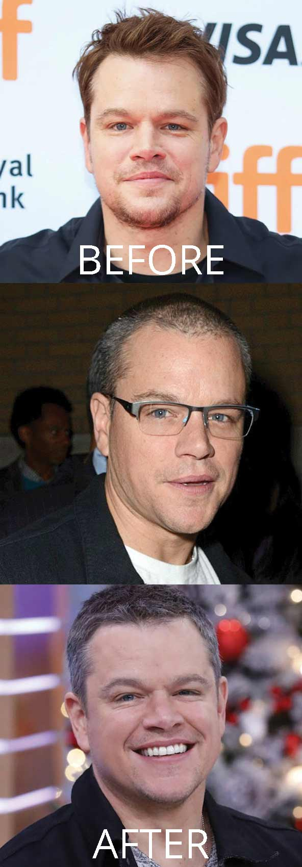 hollywood-celebrity-hair-transplant-loss-(51)-matt-damon