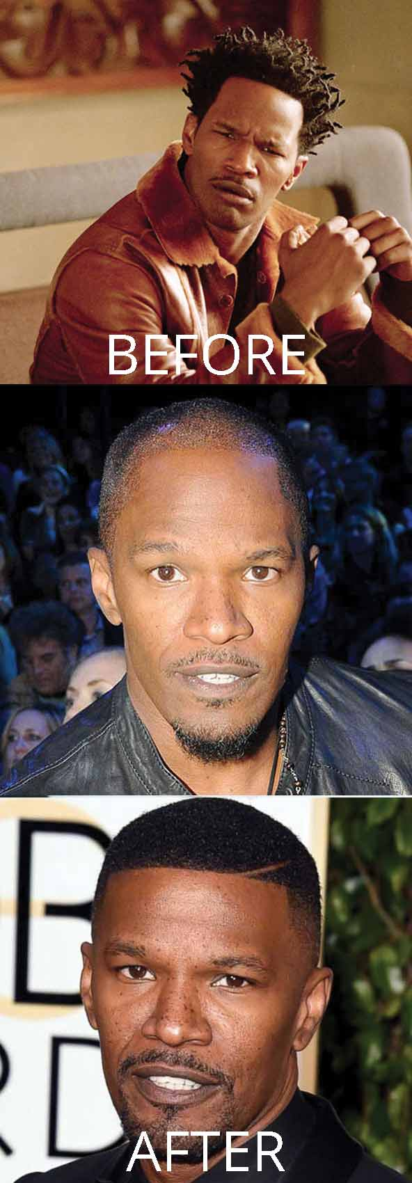 hollywood-celebrity-hair-transplant-loss-(71)-jamie-foxx