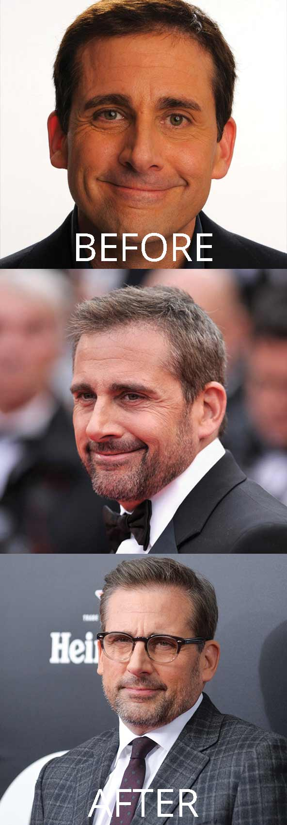 hollywood-celebrity-hair-transplant-loss-(91)-steve-carell