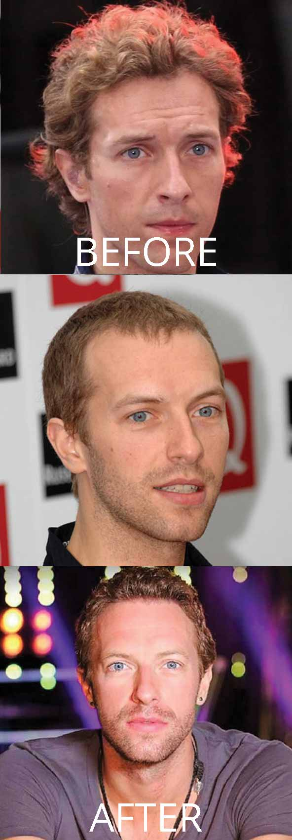 hollywood-celebrity-hair-transplant-loss-widows-peak-(11)-chris-martin