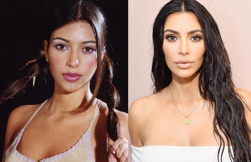kim-k-kardashian-plastic-surgery-botox-before-after