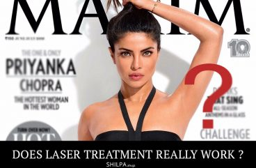 laser-hair-removal-results-hair-removal-permanent-hair-removal