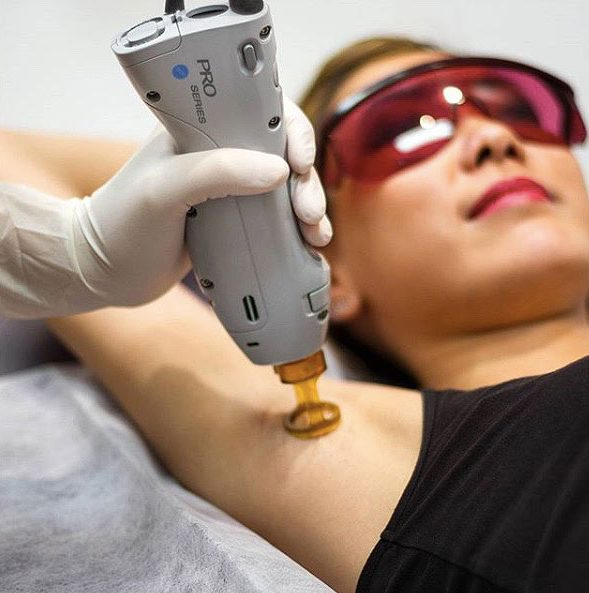 laser-hair-removal-treatment-results-pros-conts-permanent-solution