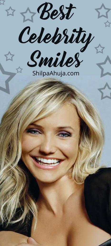 11c best celebrity smiles