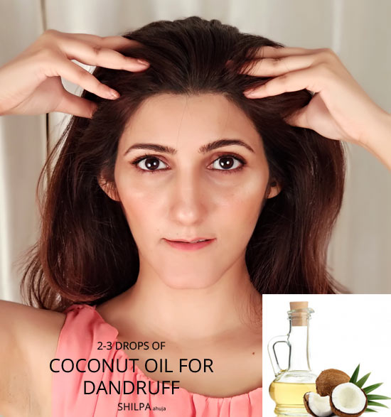 COCONUT-oil-for-hair-how-to-get-rid-of-dandruff-remedies-urgent